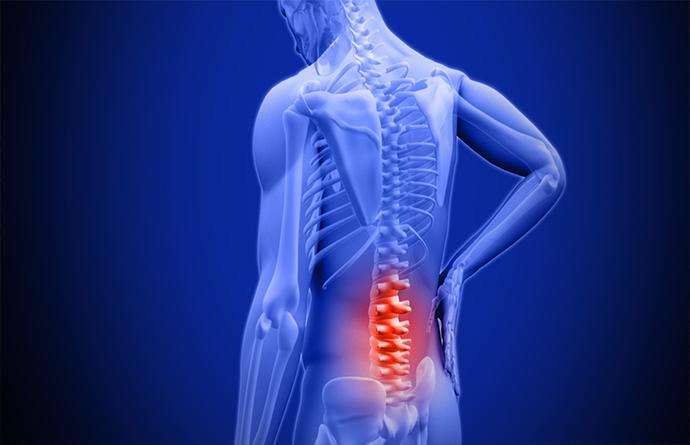 Mal di schiena? Sai veramente come curarlo?